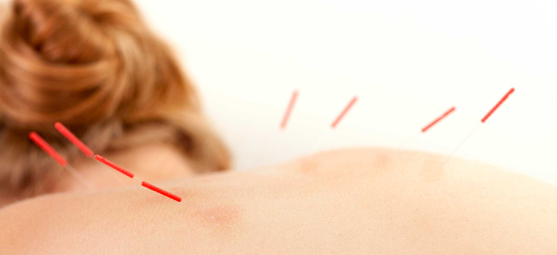 Acupuncture | SW Massage & Wellness