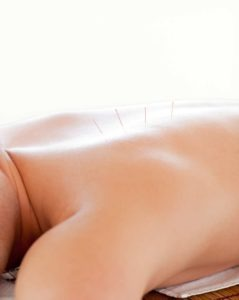 Acupuncture | SW Massage Therapy & Wellness